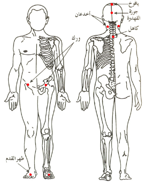 Hijama Points in Sunnah